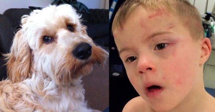 Perra salvó la vida de un niño que estaba atascado en una secadora