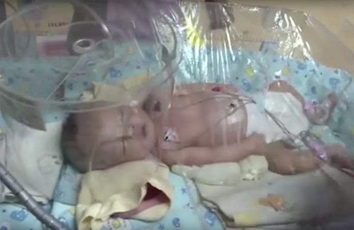 Bebé rescatado