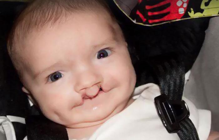 Niño con paladar hendido