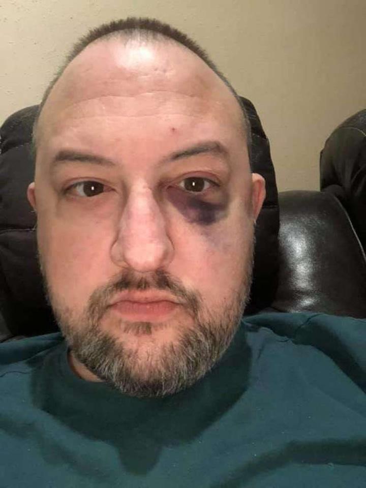 Robert golpeado